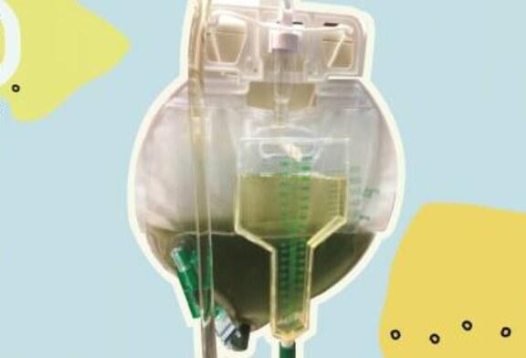У пациента палаты интенсивной терапии моча стала зеленой
